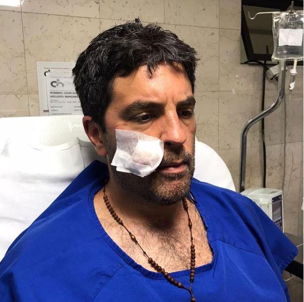 Actor de 'Enfermeras' recibió disparo en la cara durante robo en Bogotá