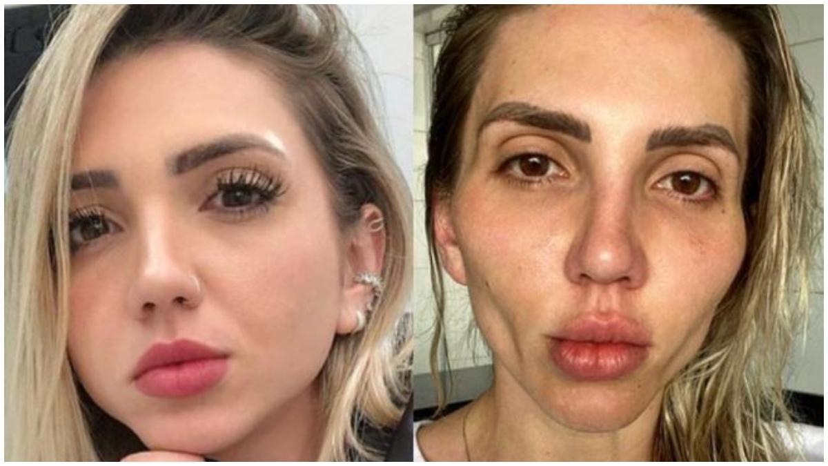 Mujer se arrepiente de hacerse cirugía en el rostro _ Foto_ Instagram
